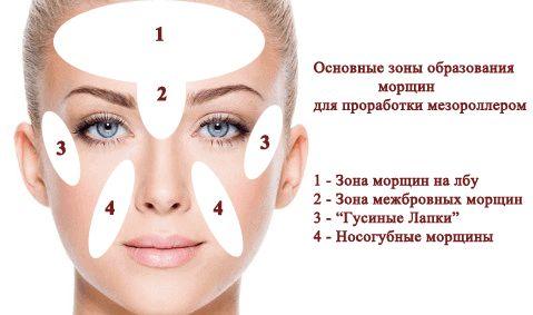 зоны образования морщин на лице