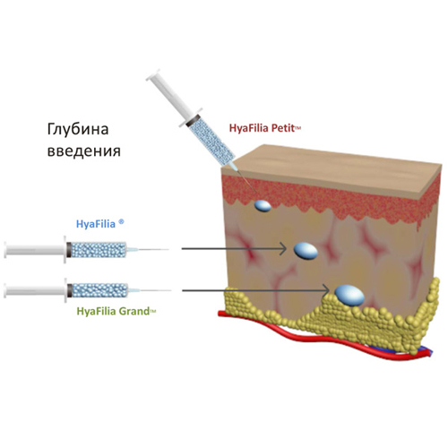 Глубина введения филлера glubina-vvedeniya-hyafilia